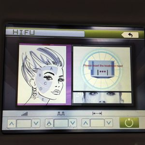 High Intensity Focused Ultrasound Hifu Face Lift