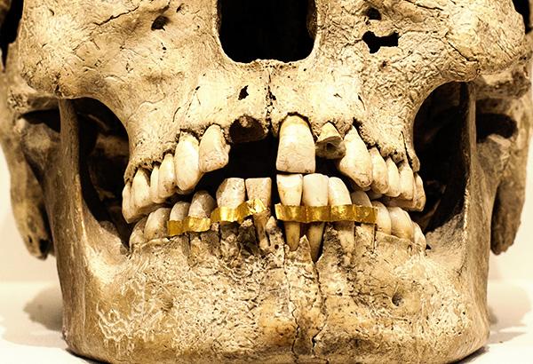 Առաջին արհեստական ատամները