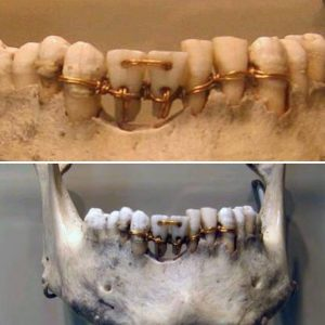Առաջին արհեստական ատամները թելերով