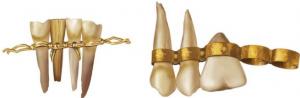 Առաջին արհեստական ատամները թելերով և մետաղալարով